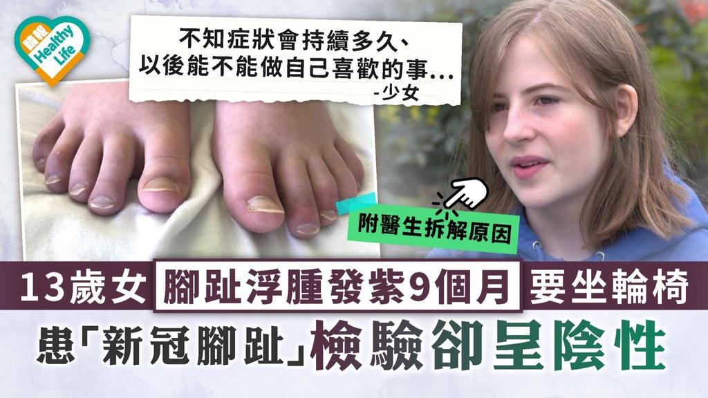新冠肺炎|13歲女腳趾浮腫發紫9個月要坐輪椅 患「新冠腳趾」檢驗卻呈陰性|附醫生拆解