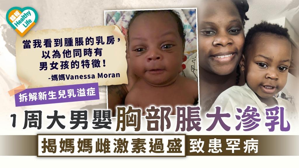 嬰兒疾病|1周大男嬰胸部脹大滲乳 揭媽媽雌激素過盛致患罕病【拆解新生兒乳溢症】