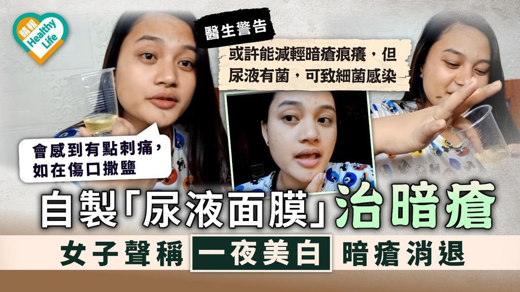 治療暗瘡|女子自製「尿液面膜」治暗瘡 醫生警告:可致細菌感染