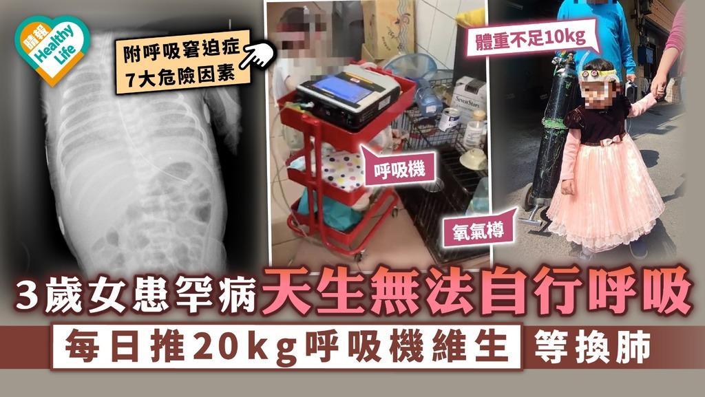 呼吸窘迫症 3歲女患罕病天生無法自行呼吸 每日推20公斤呼吸機維生等換肺