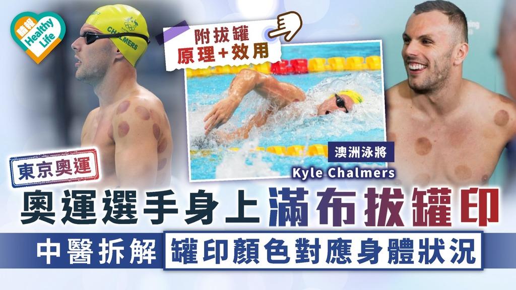中醫養生|奧運選手身上滿布拔罐印 中醫拆解罐印顏色對應身體狀況|附拔罐原理+效用