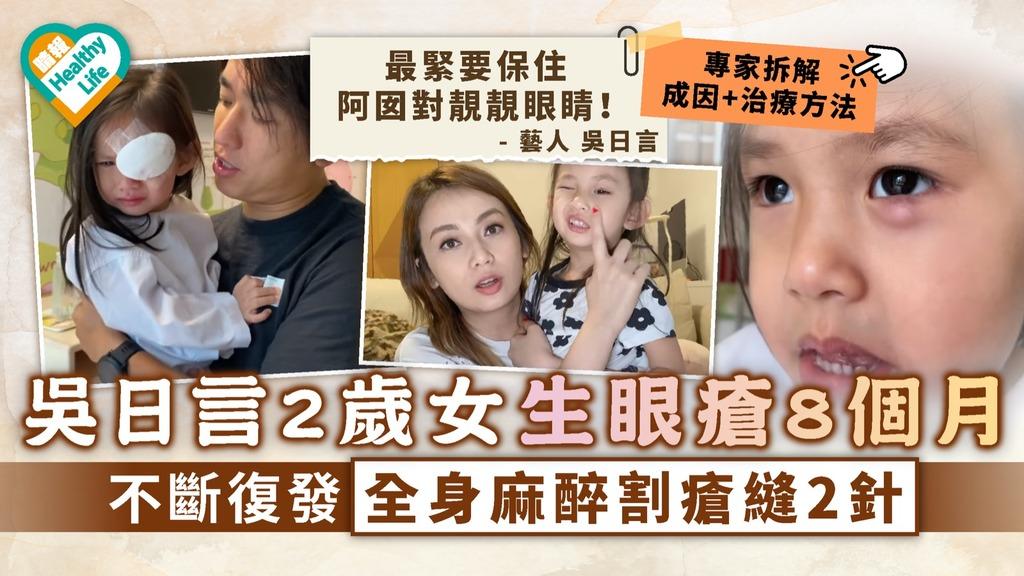 眼挑針|吳日言2歲女生眼瘡8個月 不斷復發全身麻醉割瘡縫2針|專家拆解成因+治療方法
