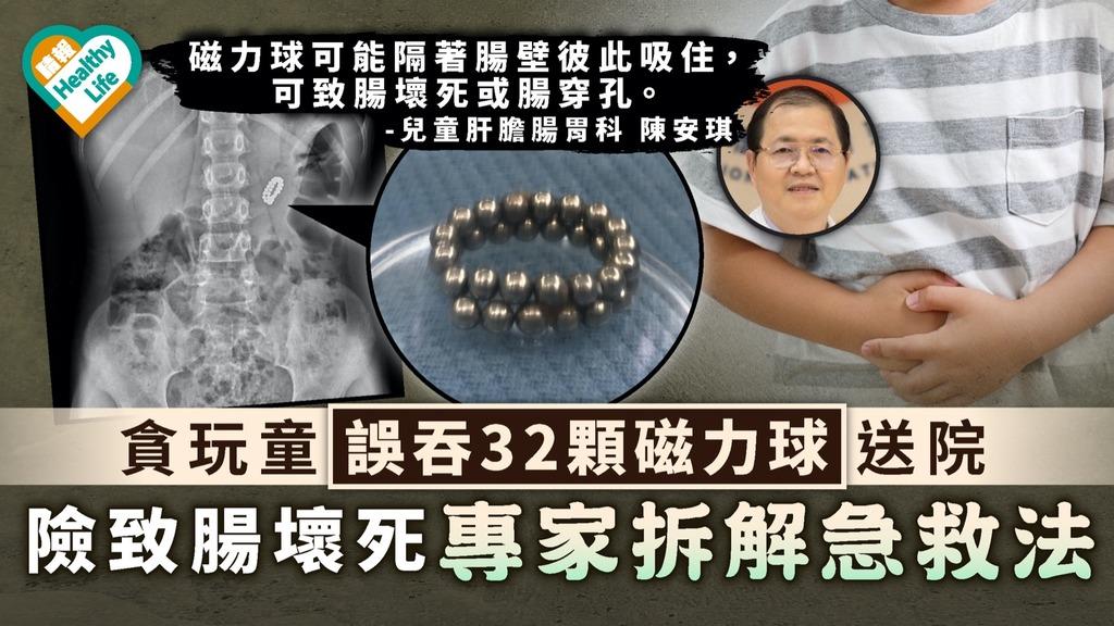 家長注意 貪玩童誤吞32顆磁力球送院 險致腸壞死專家拆解急救法