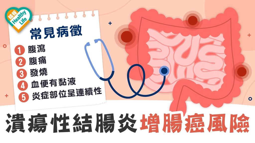 結腸炎 │ 潰瘍性結腸炎可致腸穿窿 或須切腸 生物製劑療效佳惟藥價昂