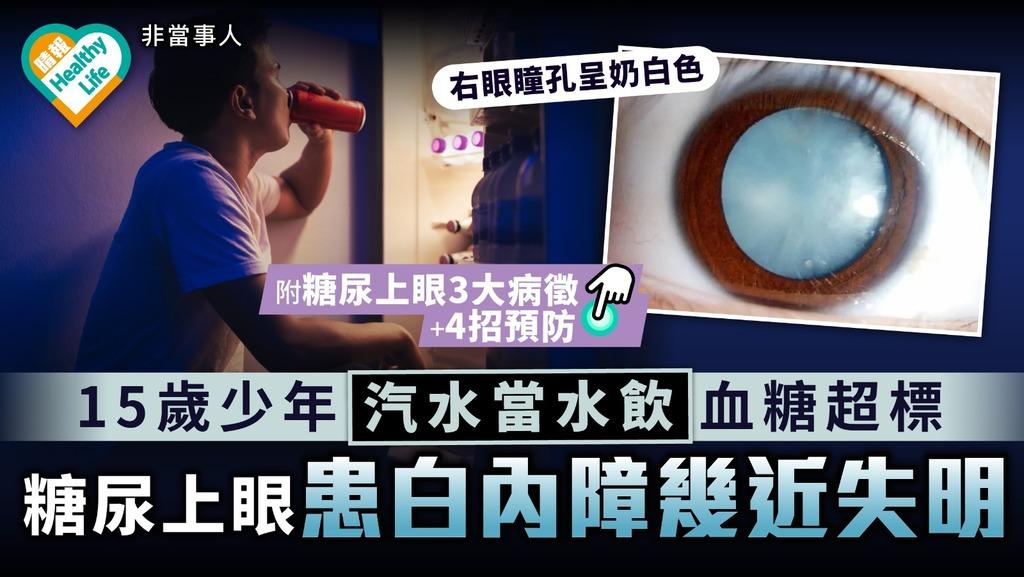 糖尿病 15歲少年汽水當水飲血糖超標 糖尿上眼右眼變白幾近失明 附3大病徵+4招預防