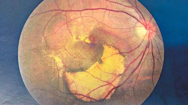 濕性老年黃斑病變可致盲