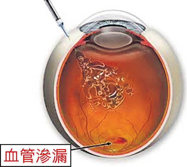 濕性黃斑病變 眼睛要打針