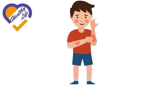 濕疹礙睡眠損外觀 易致情緒問題