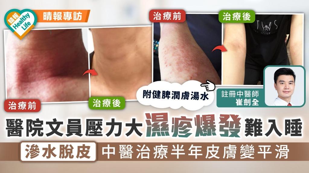 對抗濕疹 醫院文員壓力大濕疹爆發難入睡 滲水脫皮中醫治療半年皮膚變平滑 附健脾潤膚湯水