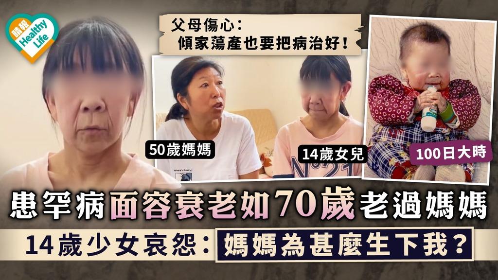 皮膚鬆弛症|患罕病面容衰老如70歲老過媽媽 14歲少女哀怨:媽媽為甚麼生下我?