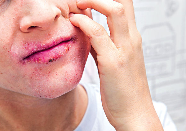 面頰又紅又腫 點只濕疹咁簡單