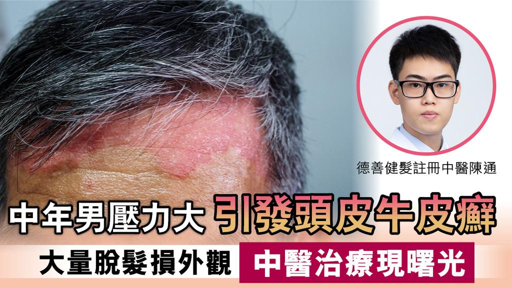 中年男患牛皮癬 成頭皮屑又發炎遭冷眼 中醫治療脫髮牛皮癬扭轉人生