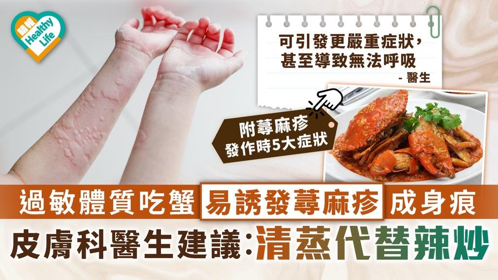 過敏體質|過敏體質食蟹易誘發蕁麻疹成身痕 皮膚科醫生建議︰清蒸代替辣炒|附蕁麻疹發作5大症狀