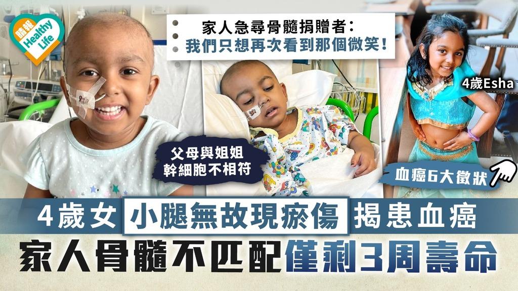 兒童健康|4歲女小腿無故現瘀傷揭患血癌 家人骨髓不匹配僅剩3周壽命|附血癌6大徵狀