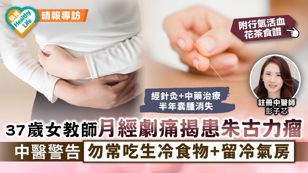 女性健康 37歲女教師月經劇痛揭患朱古力瘤 中醫警告勿常吃生冷食物+留冷氣房