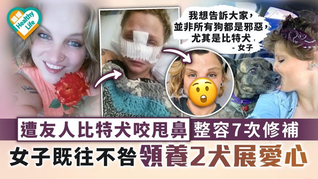 意外毀容 遭友人比特犬咬甩鼻整容7次修補 女子既往不咎領養2犬展愛心