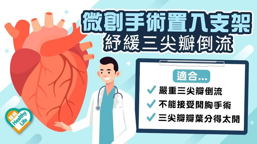 心臟疾病 │ 三尖瓣倒流氣促呼吸難 新微創手術植入支架紓緩