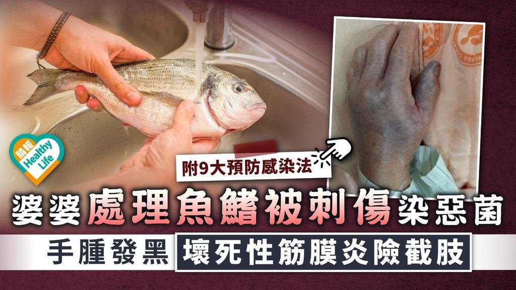 創傷弧菌 婆婆處理魚鰭被刺傷染惡菌 手腫發黑壞死性筋膜炎險截肢 附9大預防感染法