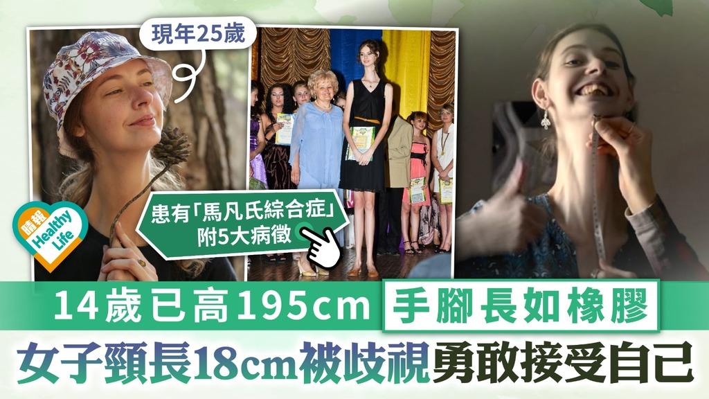 世上最長頸 14歲已高195cm手腳長如橡膠 女子頸長18cm被歧視勇敢接受自己