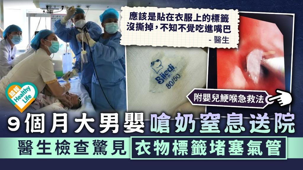 家長留意|9個月大男嬰嗆奶窒息送院 醫生檢查驚見衣物標籤堵塞氣管|附嬰兒鯁喉急救法