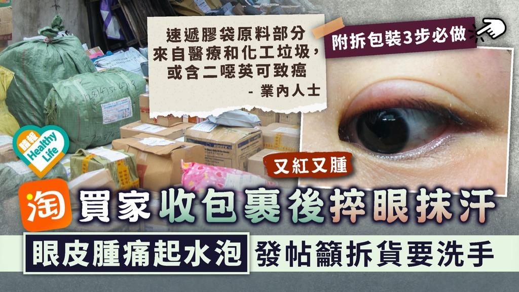 注意衛生|淘寶買家收包裹後捽眼抹汗 眼皮腫痛起水泡發帖籲拆貨要洗手|附拆包裝3步必做