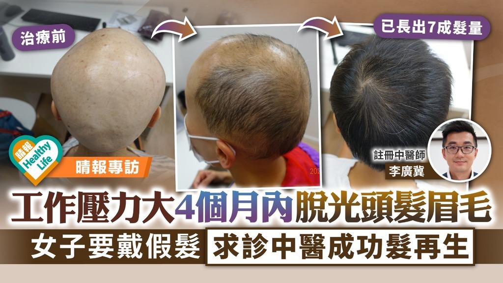 脫髮問題 工作壓力大4個月內脫光頭髮眉毛 女子要戴假髮求診中醫髮再生