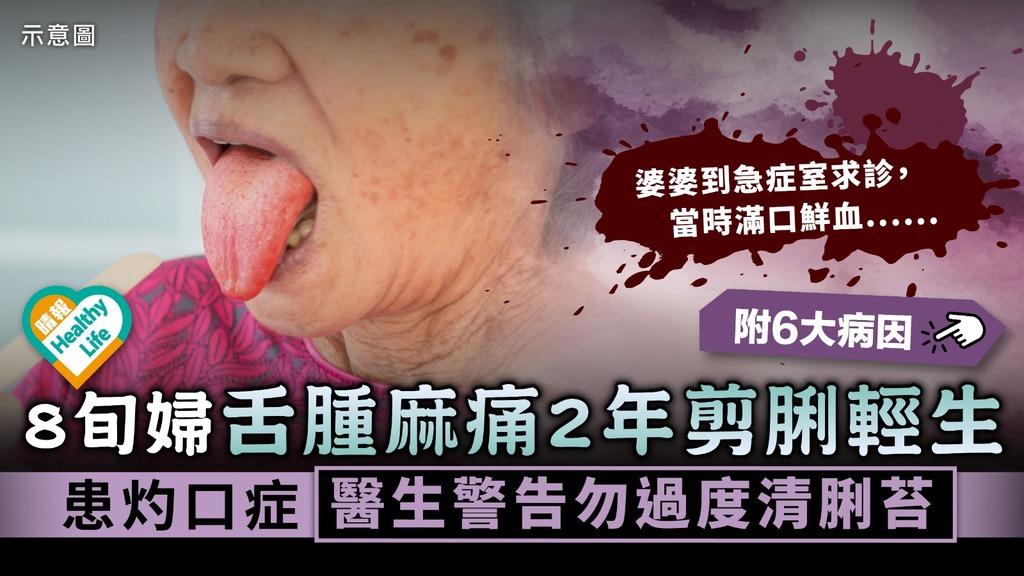口腔灼熱症候群|8旬婦舌腫麻痛2年剪脷輕生 患灼口症醫生警告勿過度清脷苔|附6大常見病因