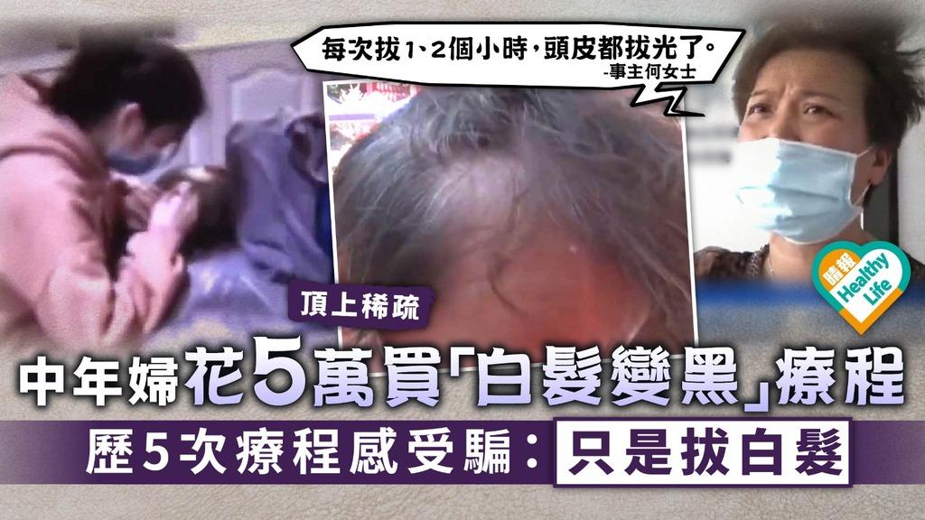 美容騙案︳中年婦花5萬買「白髮變黑」療程 歷5次療程感受騙:只是拔白髮