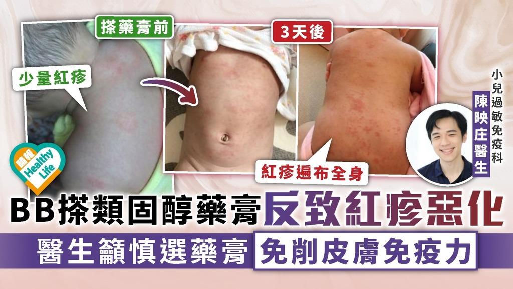 幼兒健康|BB搽類固醇藥膏反致紅疹惡化 醫生籲慎選藥膏免削皮膚免疫力