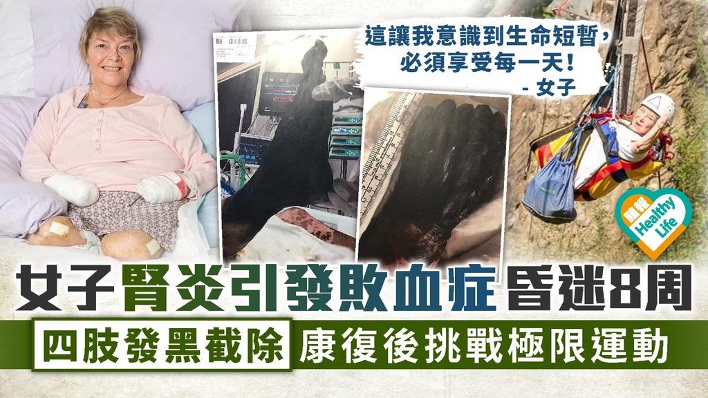 泌尿道感染︳女子腎炎引發敗血症昏迷8周 四肢發黑截除康復後挑戰極限運動