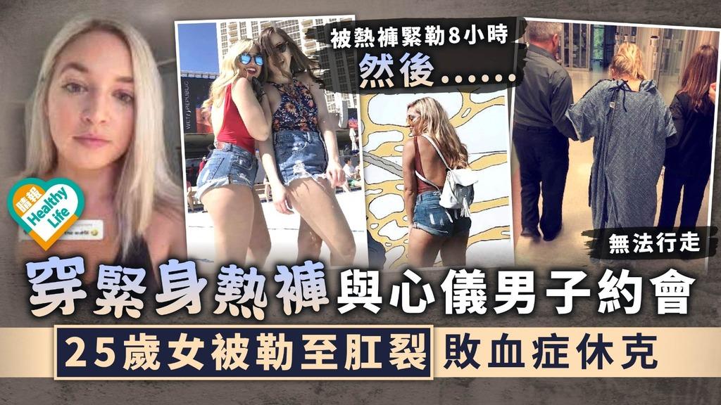 太緊出事︳穿緊身熱褲與心儀男子約會 25歲女被勒至肛裂敗血症休克