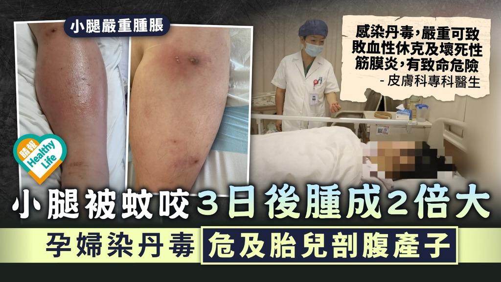 蚊叮危機︳小腿被蚊咬3日後腫成2倍大 孕婦染丹毒危及胎兒剖腹產子