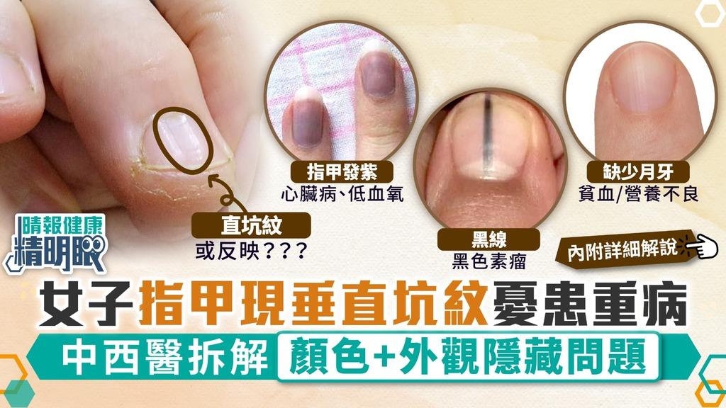 健康精明眼︳指甲健康!女子指甲現垂直坑紋憂患重病 中西醫拆解顏色+外觀隱藏問題