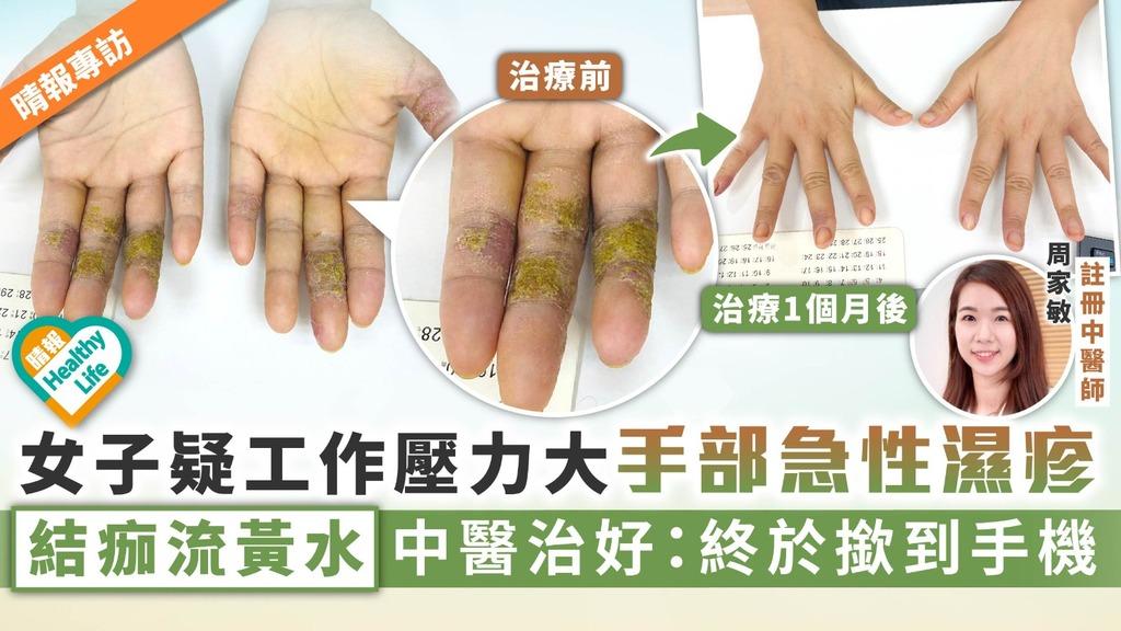 中醫治濕疹︳女子疑工作壓力大手部急性濕疹 結痂流黃水中醫治好:終於撳到手機
