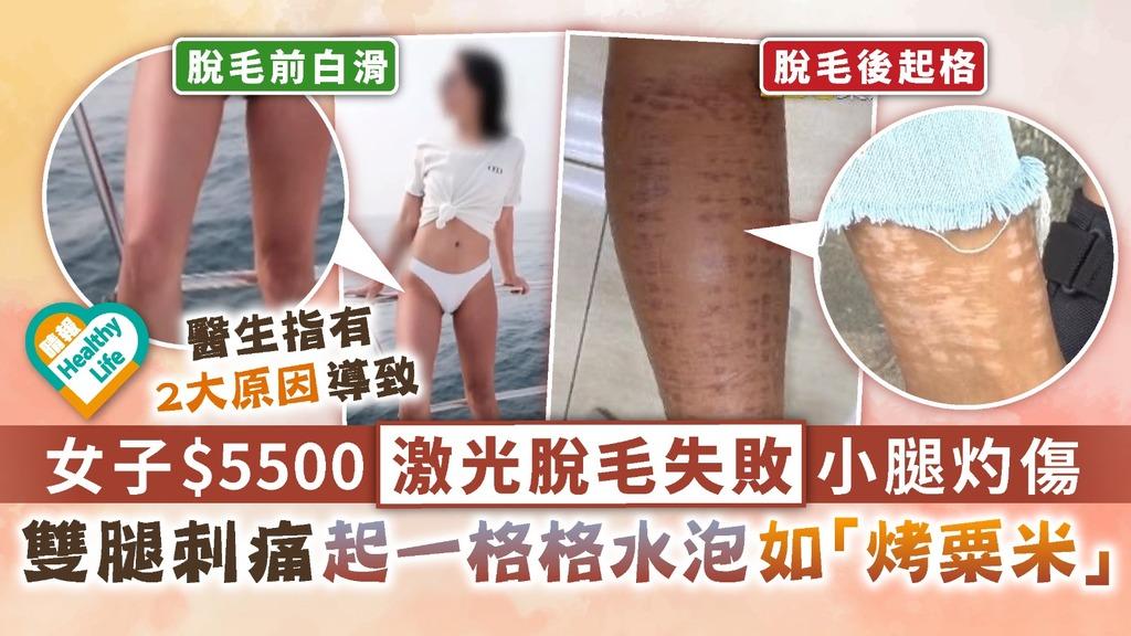 醫美脫毛︳女子$5500激光脫毛失敗小腿灼傷 雙腿刺痛起一格格水泡如「烤粟米」