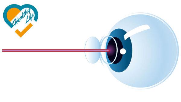曾矯視者摘白內障 手術誤差已大減