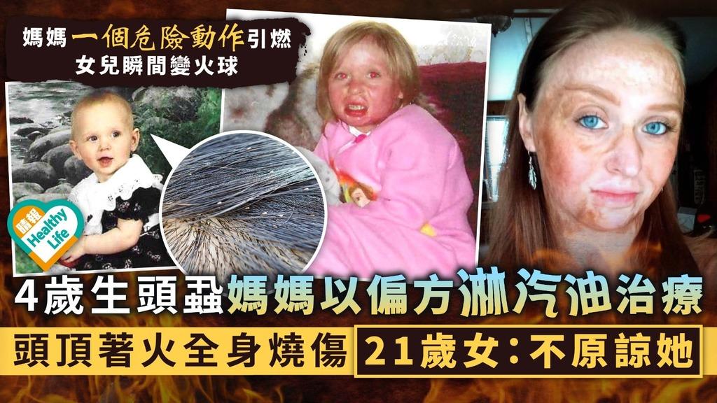 誤信偏方︳4歲生頭蝨媽媽以偏方淋汽油治療 頭頂著火全身燒傷21歲女:不原諒她