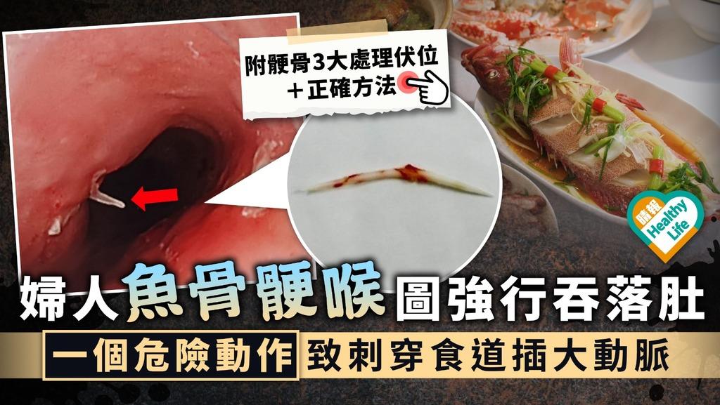 食用安全︳婦人魚骨骾喉圖強行吞落肚 一個危險動作致刺穿大動脈︳附鯁骨處理方法