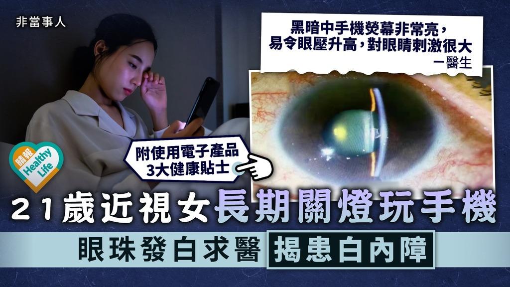電子用品︳21歲近視女長期關燈玩手機 眼珠發白求醫揭患白內障︳附白內障症狀
