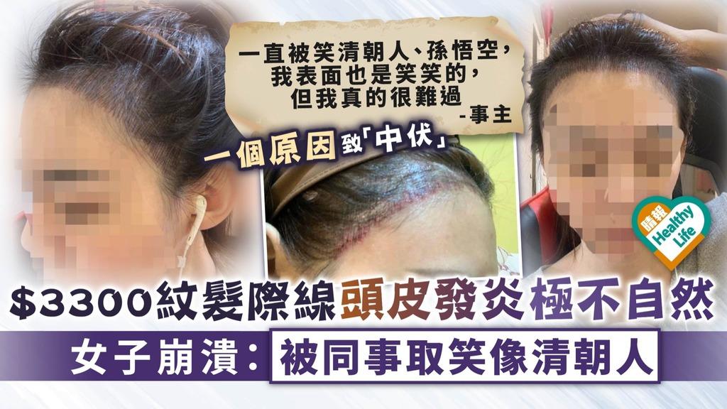 美容失誤︳$3300紋髮際線頭皮發炎極不自然 女子崩潰:被同事取笑像清朝人