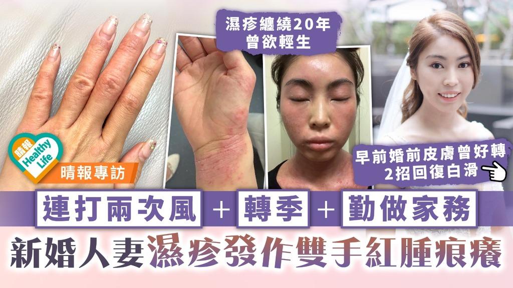 濕疹之苦︳連打兩次風+轉季+勤做家務 新婚人妻濕疹發作雙手紅腫痕癢
